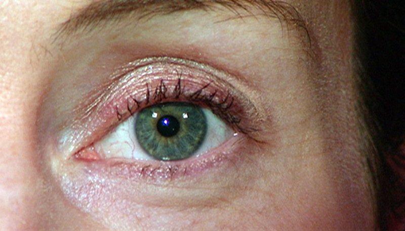 Der Große Augenreport